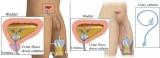 Uretrální katetr – silikonový